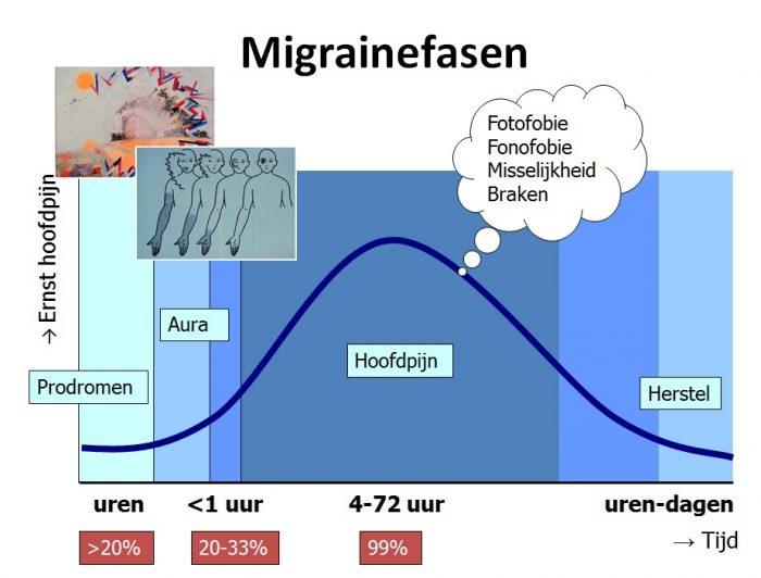 Fasen en verloop van een migraine aanval